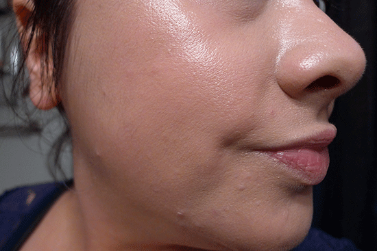 AFTER: This is the same area, just a few minutes after applying Missha MISA Cho Bo Yang BB Cream. Much better!