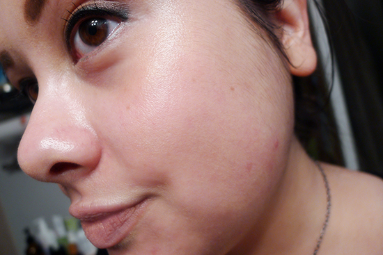 This is me with no foundation (and a pretty fun PMS breakout). Actually, there are some foundation remnants that I missed with my makeup wipe, but for the most part, this photo is foundation free.